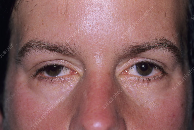 Droopy eyelid - Stock Image - M240/0526 - Science Photo Library