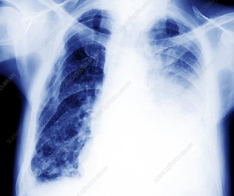 Encysted pleurisy, X-ray