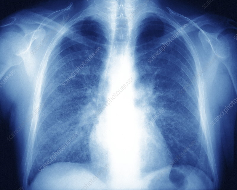 Pneumocystis pneumonia, X-ray