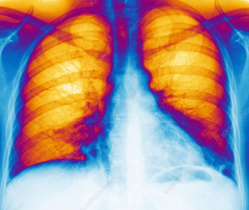 Legionnaires' disease, X-ray