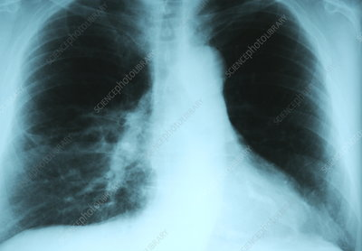 Pneumonia, chest X-ray