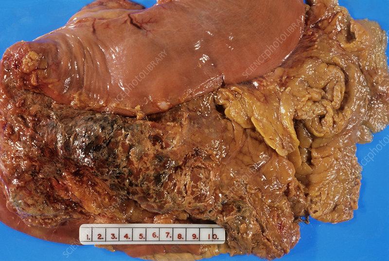 Acute pancreatitis - Stock Image M240/0561 - Science Photo ...  Acute pancreati...