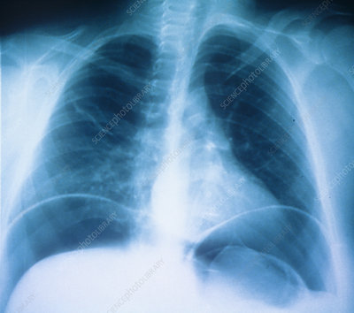 Abdominal air pockets, X-ray