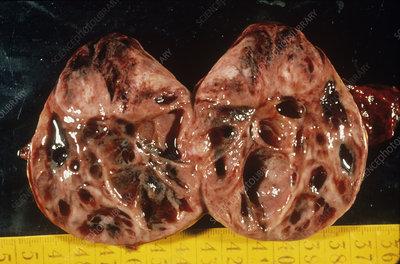 Adrenal gland tumour