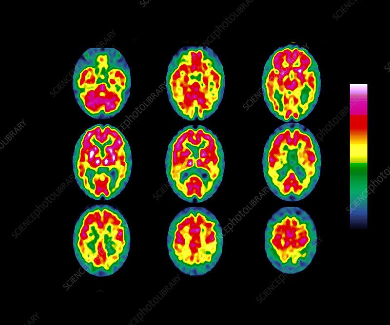 Degenerative brain disease, SPECT scans