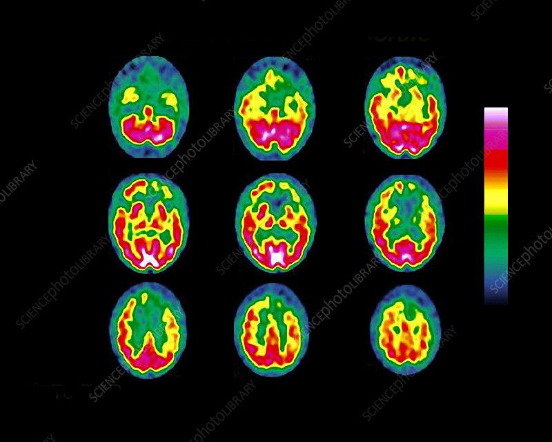 Pick's disease, SPECT brain scans