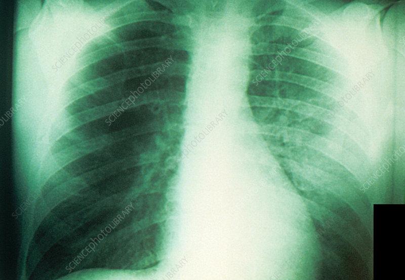 Plague X-Ray