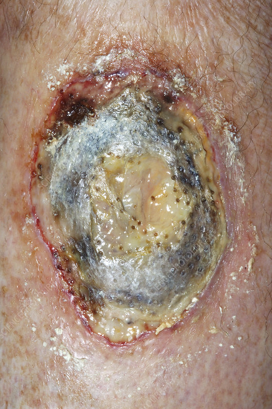 Pyoderma ulcer on a diabetic patient