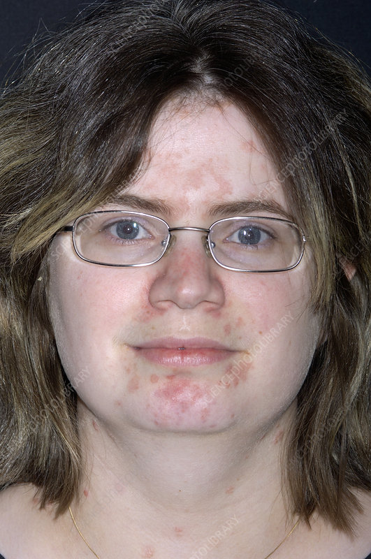 Psoriasis on a woman's face