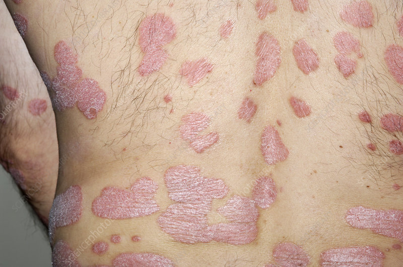 Psoriasis on a man's body