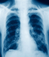 Pleural calcification, X-ray