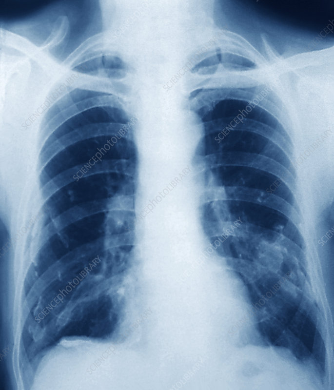 Pleural Calcification On Chest X-ray