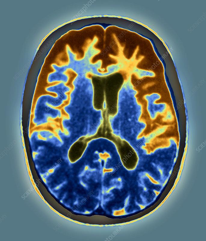 pick's disease, mri scan - stock image m240/0619 - science photo, Skeleton