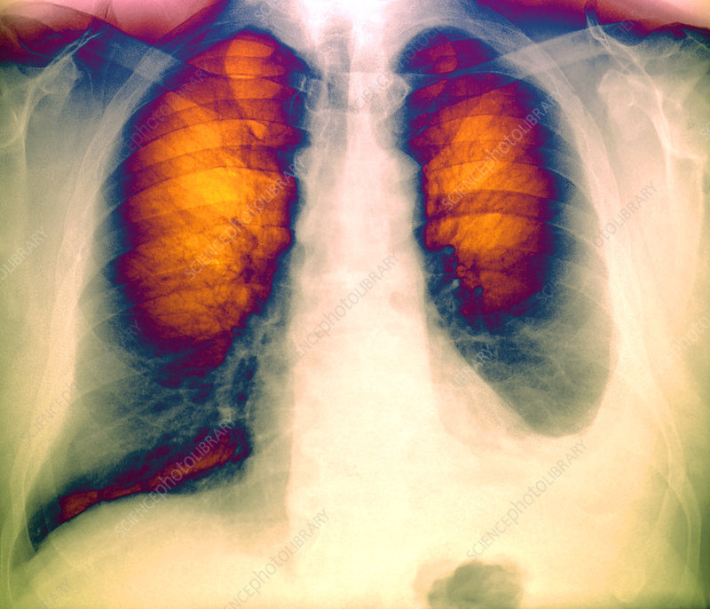 Pleural effusion, X-ray