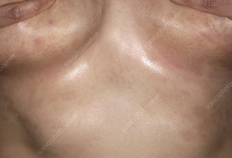 Psoriasis under the breasts
