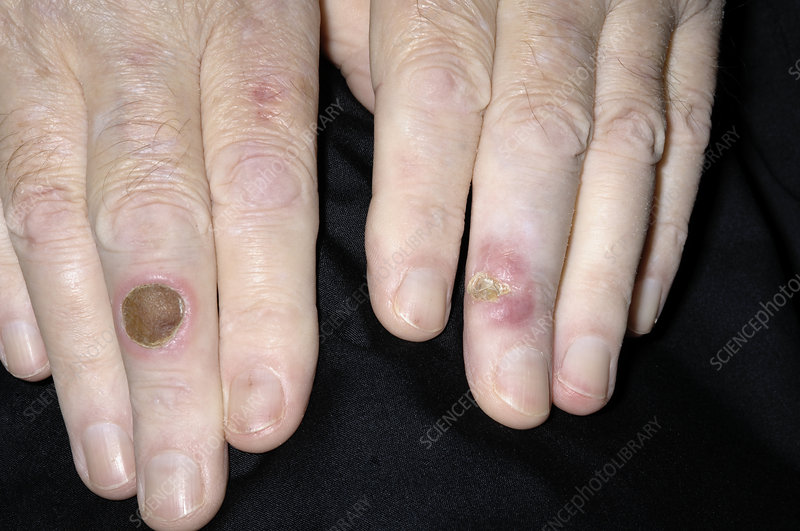 Pyoderma ulcers