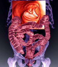 Intestines with colon polyp