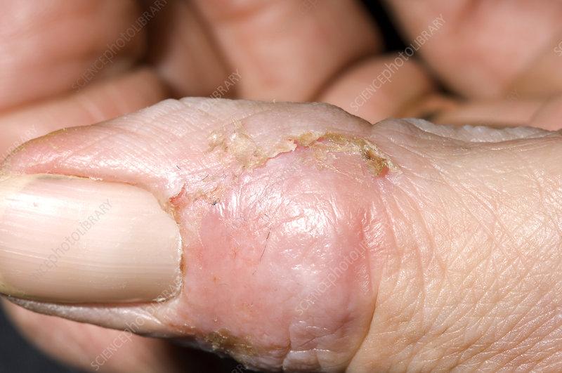 Healing paronychia infection
