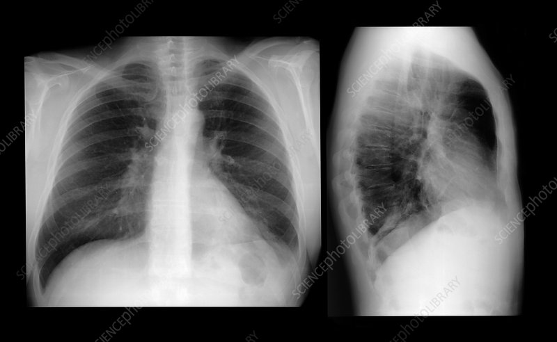 Lung infection, X-ray - Stock Image - M240/0733 - Science