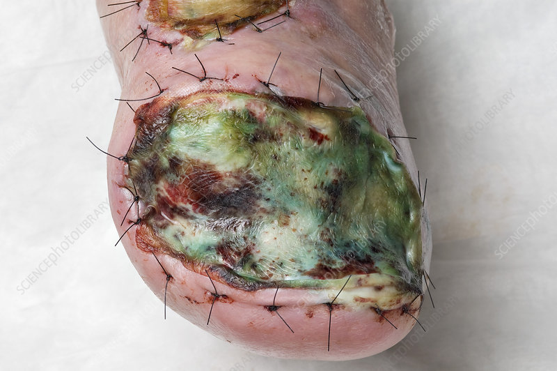Infected skin graft