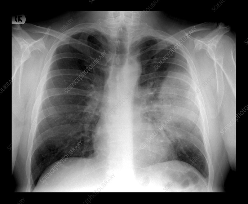 lobar pneumonia on chest x ray stock image m240 0753 science
