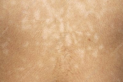 Pityriasis versicolor skin infection