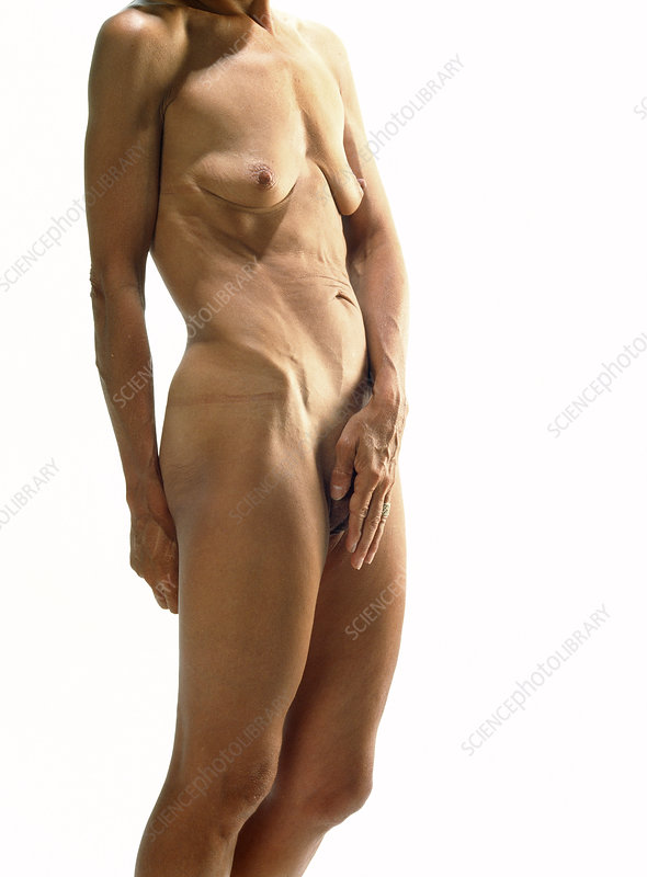 Naked body of a woman suffering anorexia nervosa