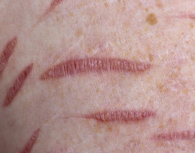 Scarring caused by self harm