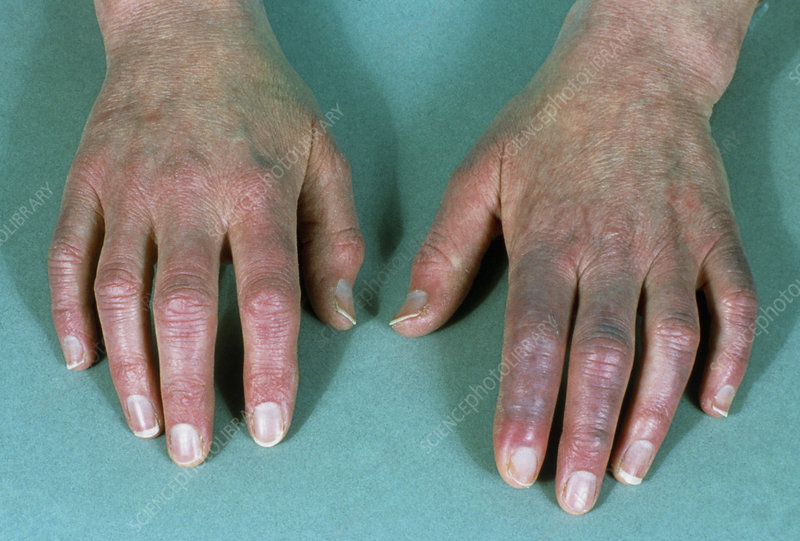 Hands of person with Raynaud's disease