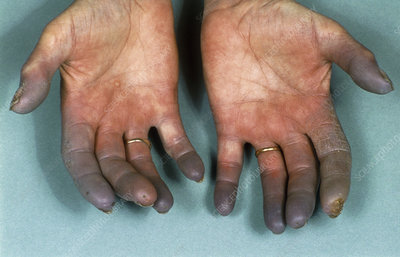 Hands of sufferer with Raynaud's disease