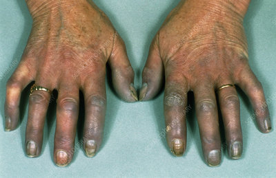 Hands of a Raynaud's disease sufferer