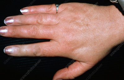 Hand of a Raynaud's syndrome sufferer