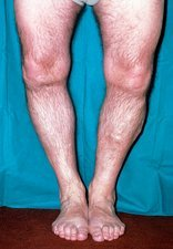 Rickets (vitamin D deficiency) in man