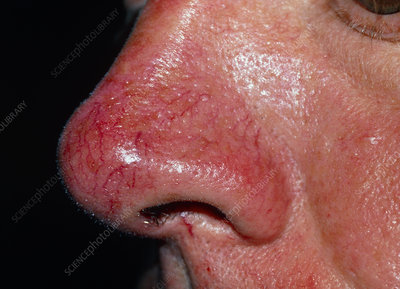 Close up of rosacea on a man's nose
