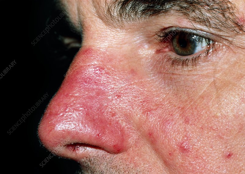 Acne Rosacea Affecting A Man S Nose Cheeks Stock Image M250