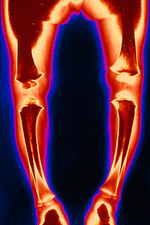 Coloured X-ray of healing rickets.