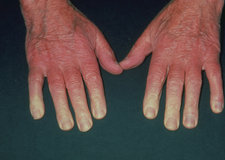 Vasospasm in old man's fingers