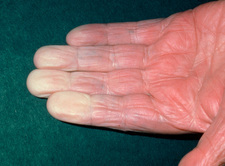 Vasospasm (Raynaud's disease) in old man's fingers