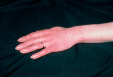 Raynaud's phenomenon in woman's hand