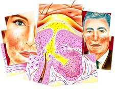 Artwork showing effects of Rosacea skin disorder
