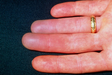 Raynaud's phenomenon seen on woman's fingers