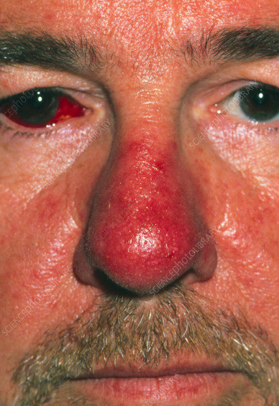 Red nose of patient with rhinophyma