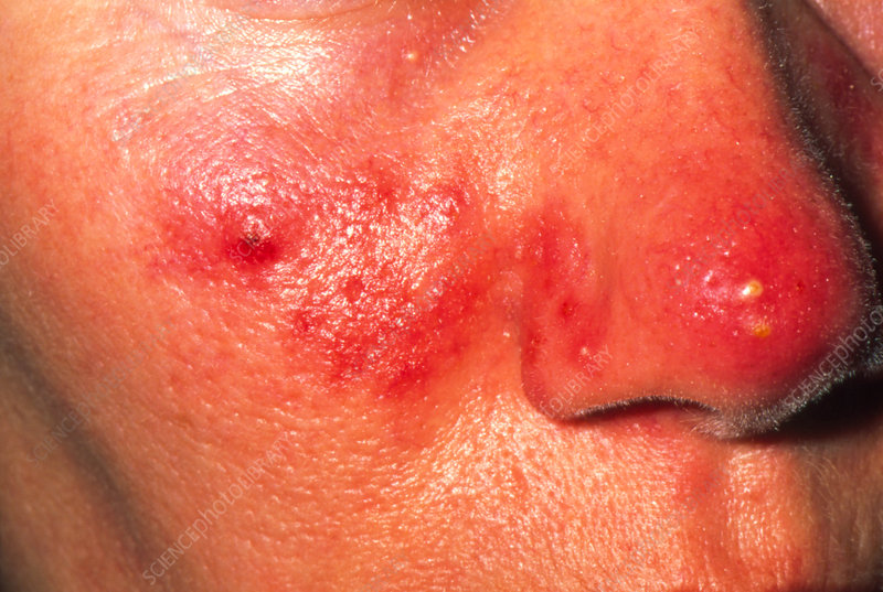 Acne rosacea affecting a woman's nose and cheeks