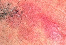 Rosacea affecting the skin on a man's face
