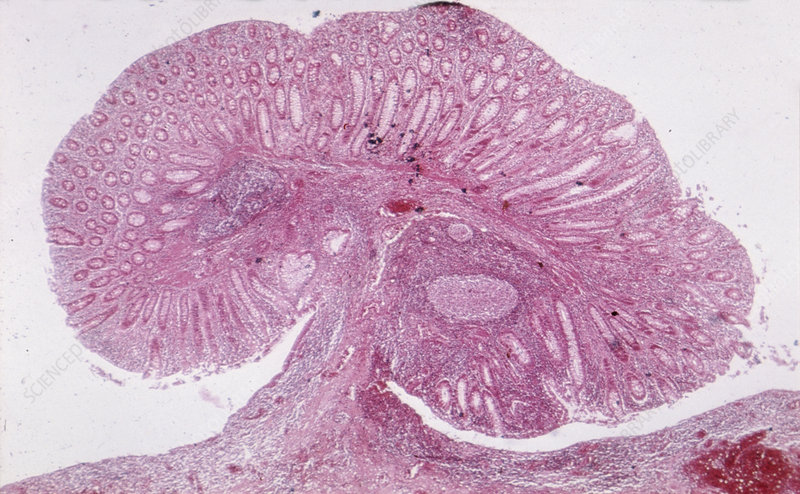 Sectioned rectocolitis polyp