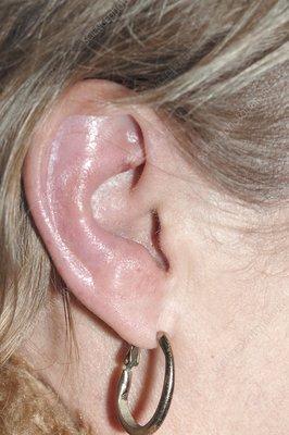 ramsay hunt syndrome ear Ramsay Hunt Syndrome