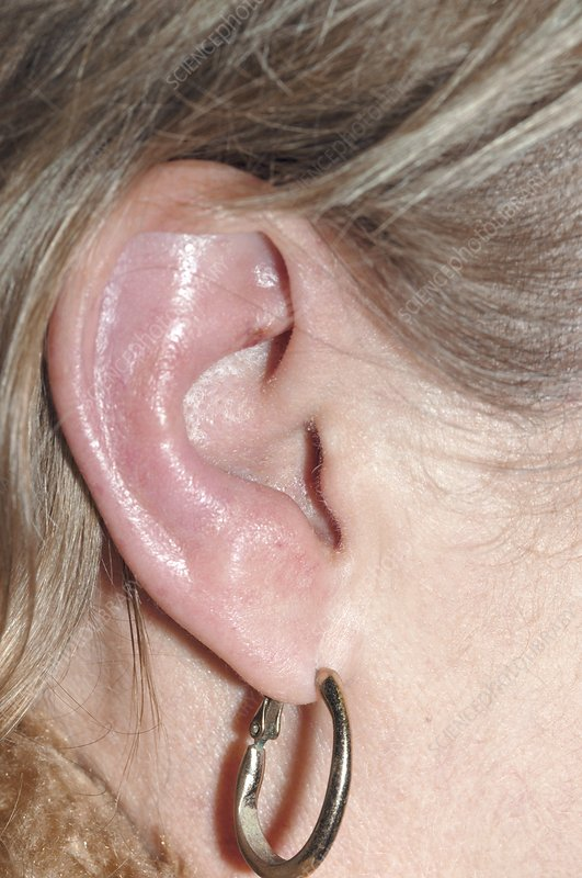 Ramsay Hunt syndrome, inflamed ear