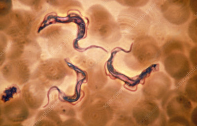 LM of Trypanosoma gambiense, sleeping sickness bug