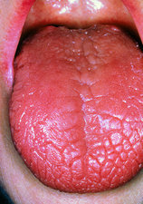 Dry tongue in Sjogren's syndrome