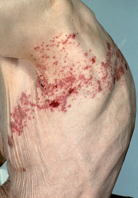 Shingles rash on elderly man's body